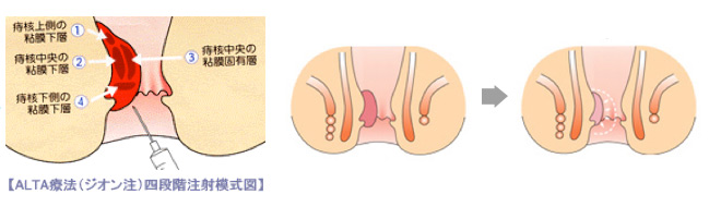後 術 ジオン 注射